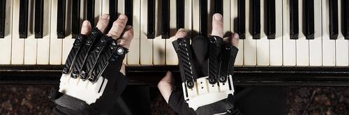 Com luvas biônicas, maestro João Carlos Martins volta a tocar piano